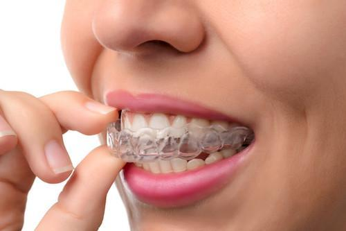 woman using clear braces | Dentist pascoe vale vic