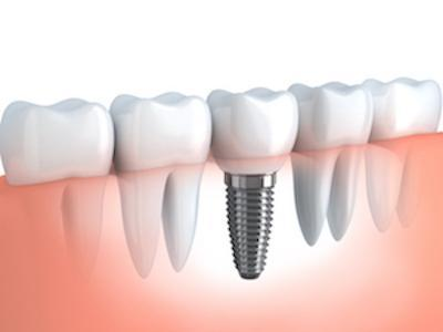 Diagram of Dental Implant and Crown | Dentist Pascoe Vale VIC