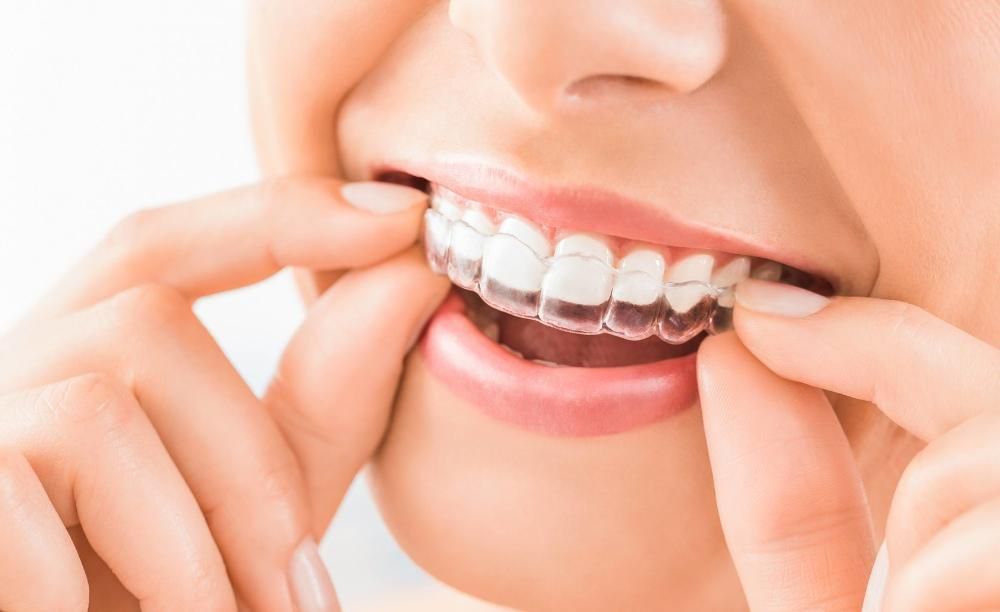Woman using invisalign | Dentist gelnroy VIC