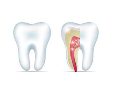Diagram of Root Canal | Dentist Glenroy VIC