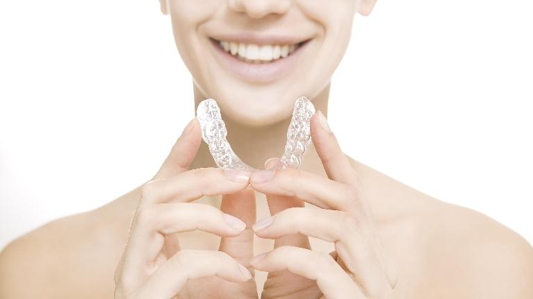 clear aligners | orthodontics pascoe vale vic