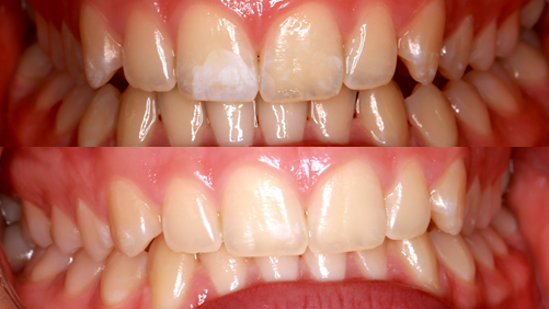 teeth whitening before & after pic | pascoe vale vic