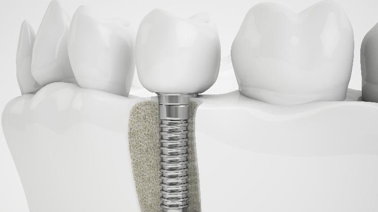 dental implant diagram | implants pascoe vale vic