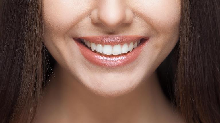 a close up of a woman smiling | pascoe vale dentist