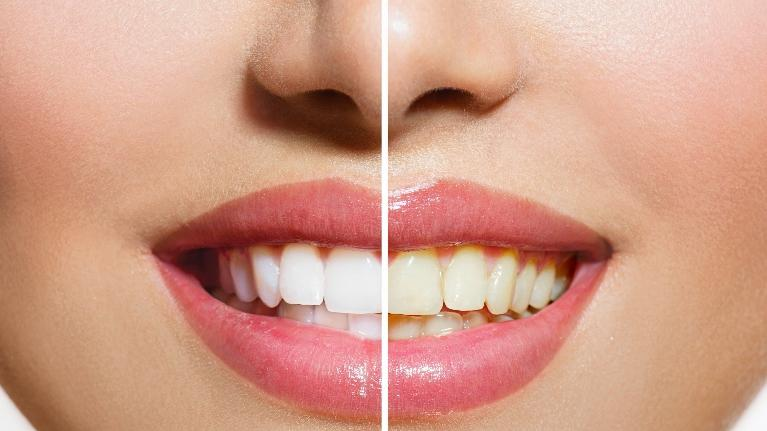 teeth whitening before & after | whitening pascoe vale vic