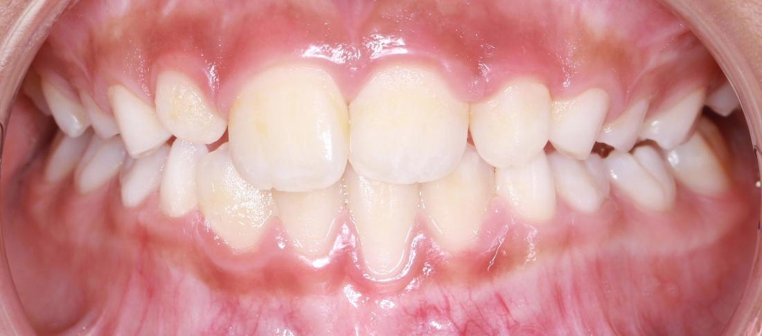 close up of upper front teeth after orthodontic treatment