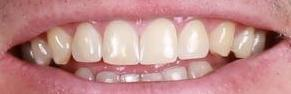 Cosmetic Dentistry - Case 1