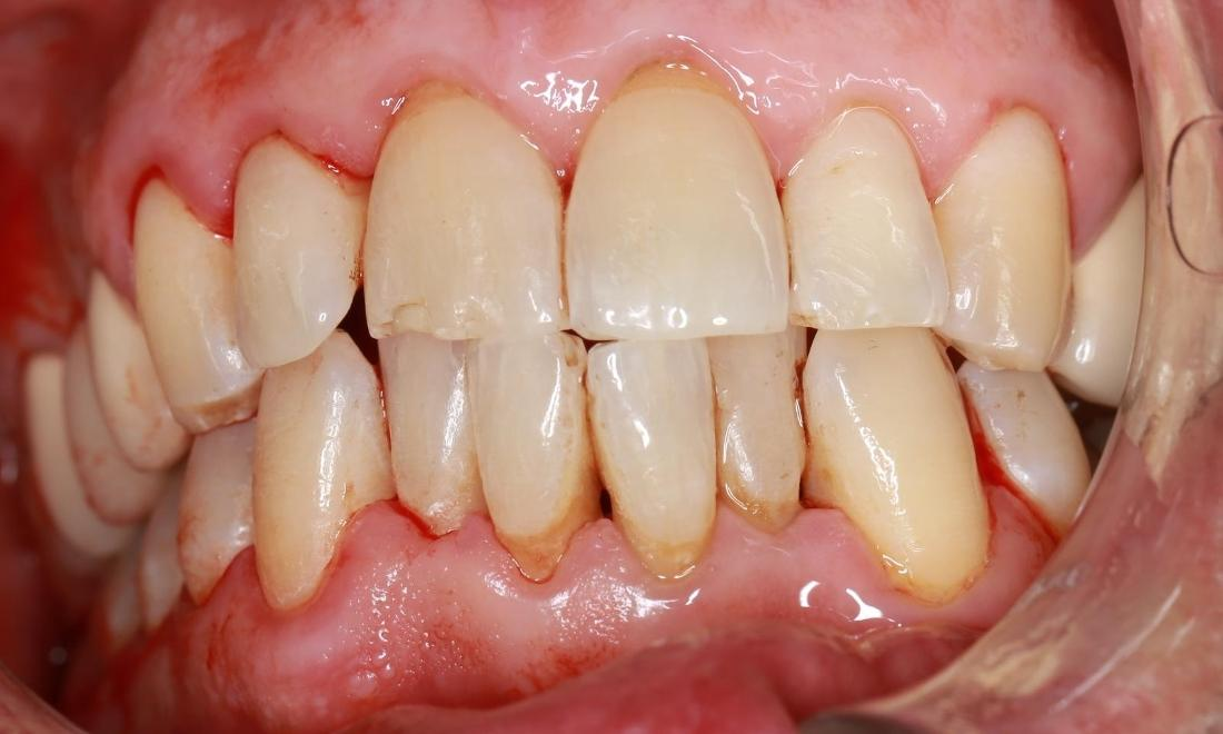 after deep cleaning | pascoe vale dentist