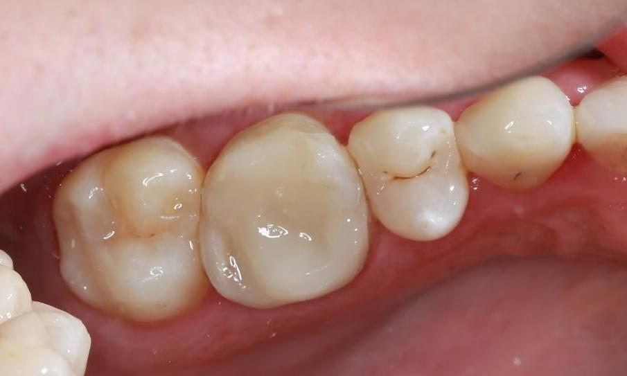 white cosmetic filling | pascoe vale dentist