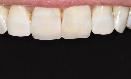 worn down front teeth after | cosmetic dentist pascoe vale