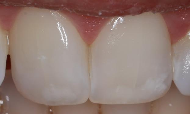 white spots on front teeth fixed | cosmetic dentist pascoe vale