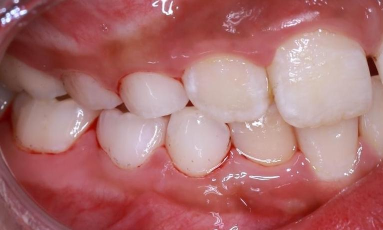 a side look of clean teeth after a deep cleaning at our pascoe vale dental office