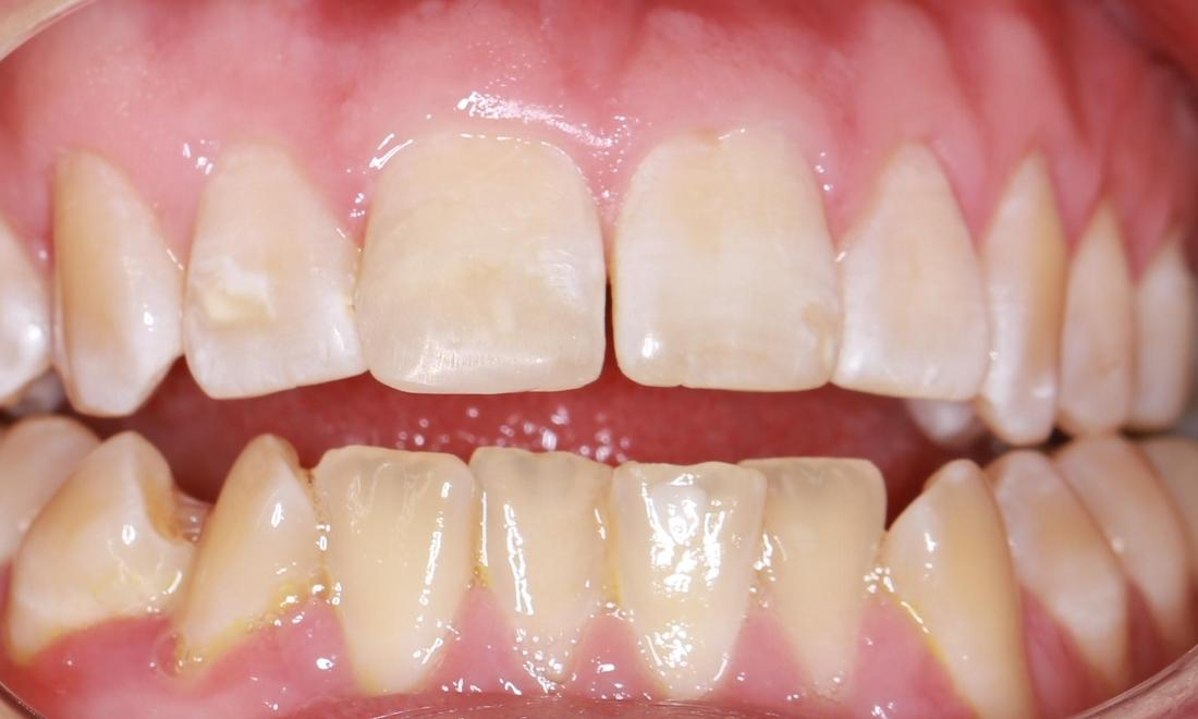 a complete front tooth, after cosmetic dental treatment at out pascoe vale office