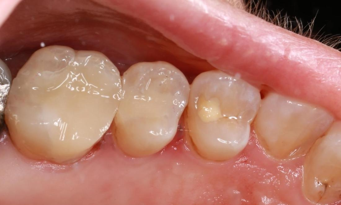 a set of teeth with new, tooth colored fillings from our pascoe vale office