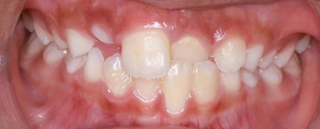 close up of upper front teeth before orthodontic treatment