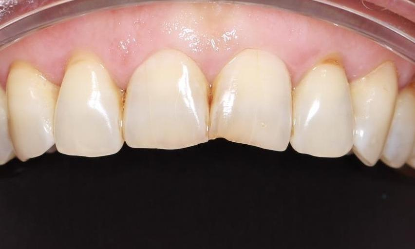 worn down front teeth before | cosmetic dentist pascoe vale