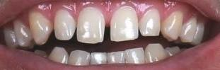 a frontal view of top and bottom teeth before a cosmetic dental treatment at our pasecoe vale office