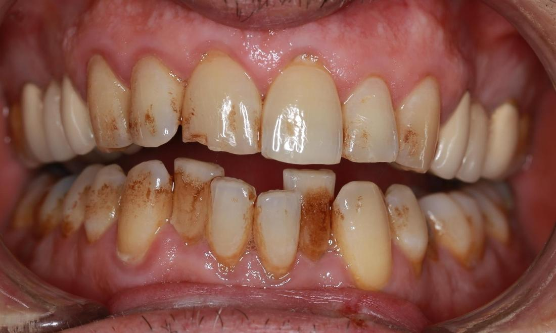 before deep cleaning | pascoe vale dentist