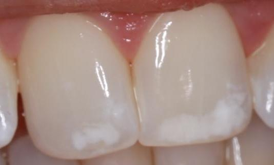 upper front teeth with white spots before a cosmetic treatment at our pascoe vale dental office