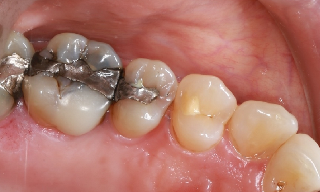 a set of teeth with old, silver fillings