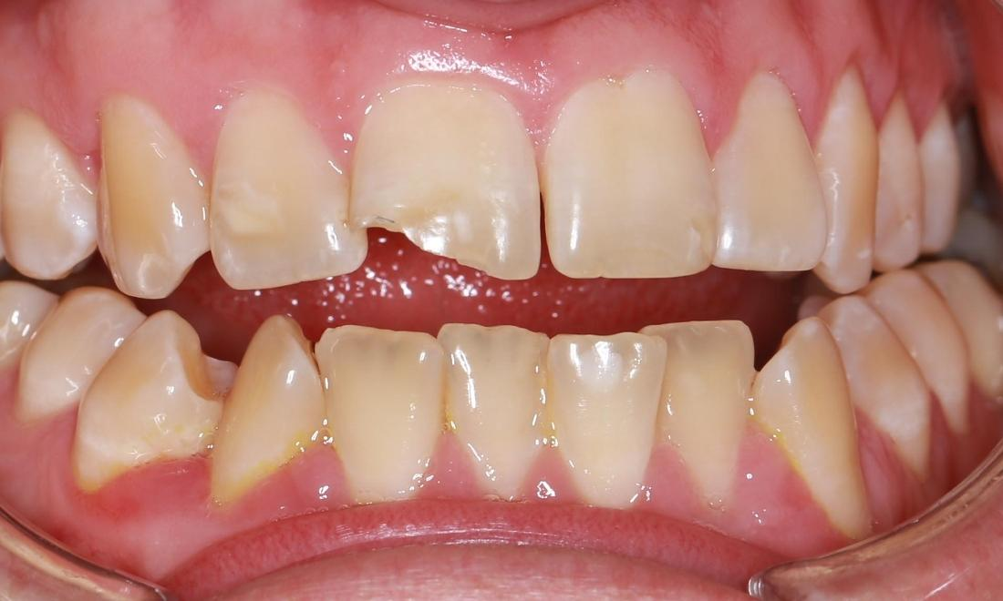 a chipped front tooth before cosmetic treatment