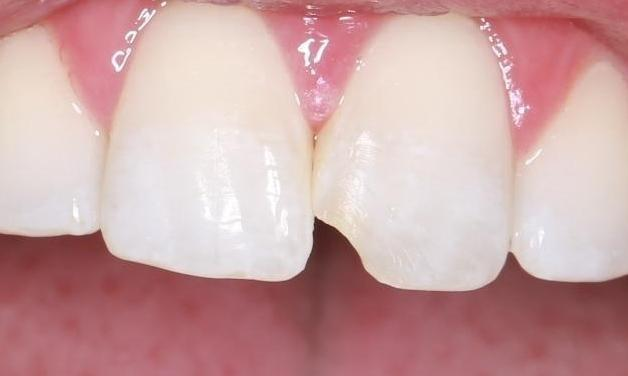 chipped front tooth before | cosmetic dentist pascoe vale