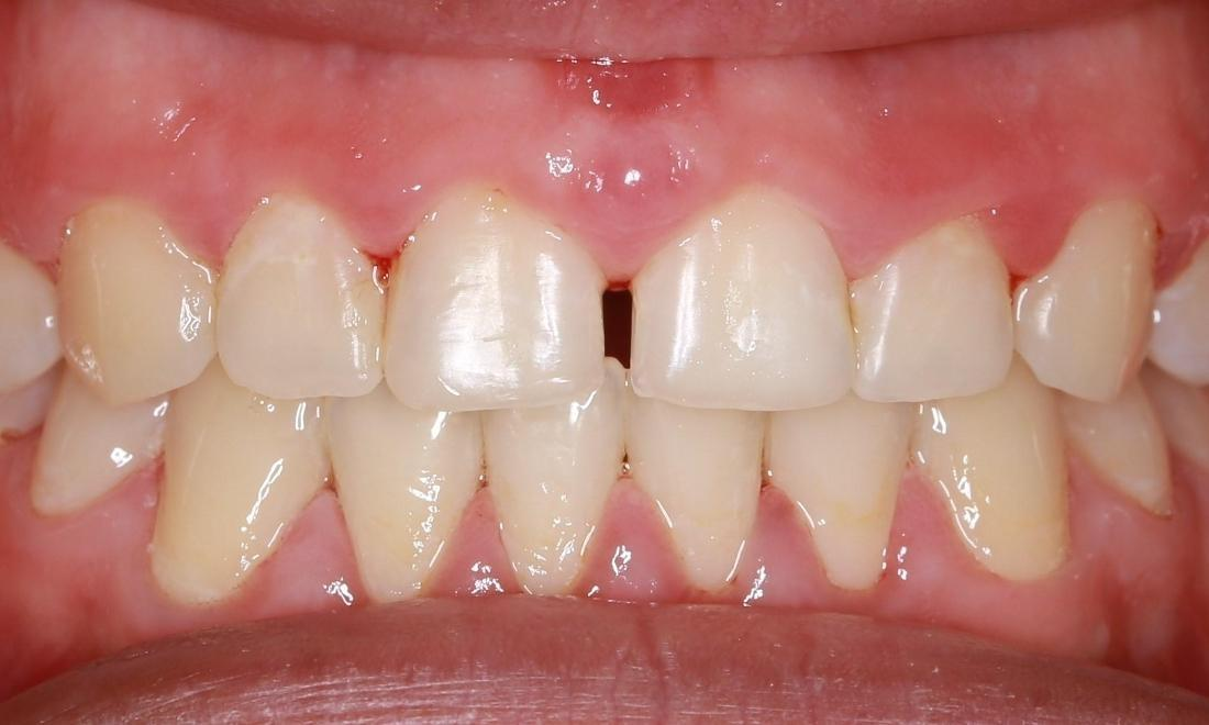 white spots on teeth fixed | dentist pascoe vale