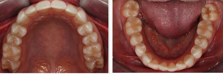 a side by side image of the top and bottom set of someone's teeth, taken from the